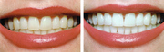 Professional Cosmetic Teeth Whitening